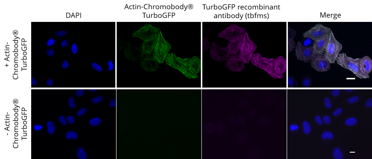 HeLa cells transiently expressing Actin-Chromobody®-TurboGFP were immunostained with TurboGFP recombinant antibody, VHH-mouse IgG1 Fc fusion [CTK0204] (tbfms, 1:400) and Nano-Secondary® alpaca anti-mouse IgG1, recombinant VHH, Alexa Fluor® 647 [CTK0103, CTK0104] (sms1AF647-1, 1:500). Scale bar, 10 µM