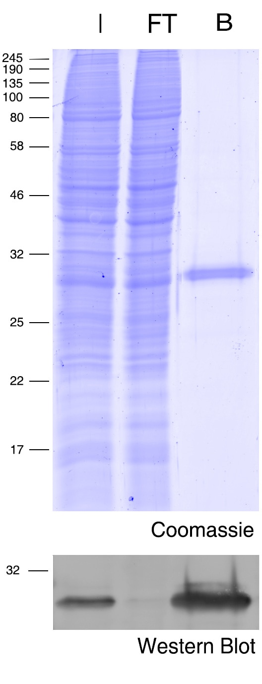 Coomassie blue stained gel and Western blot.