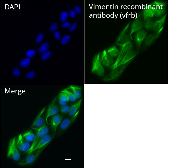 MDCK cells were immunostained with Vimentin recombinant antibody, VHH-rabbit IgG Fc fusion [CTK0211] (vfrb, 1:1,000) and Nano-Secondary® alpaca anti-human IgG/anti-rabbit IgG, recombinant VHH, Alexa Fluor® 647 [CTK0101, CTK0102] (srbAF647-1, 1:1,000). Scale bar, 10 µM.