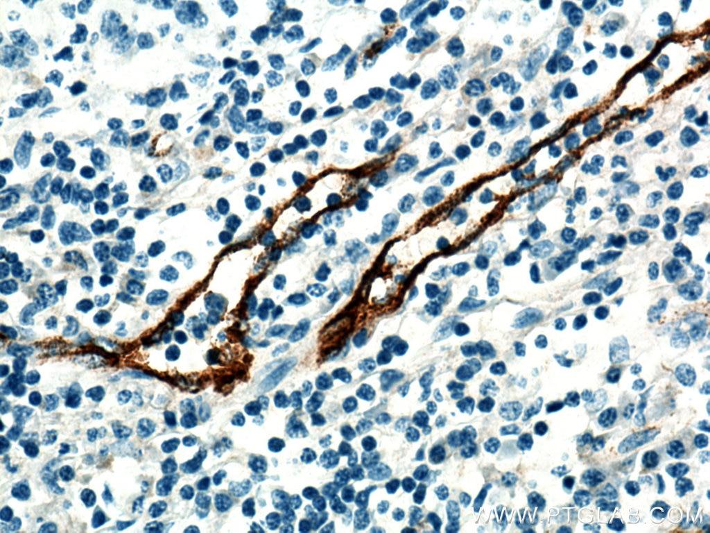 IHC staining of human tonsillitis using 27186-1-AP