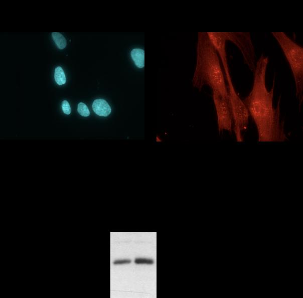 NDE1 Antibody Western Blot,Immunofluorescence, validation (1/1500 (WB) et 1/100 (IF) dilution) in primary human fibroblasts (Cat no:10233-1-AP)