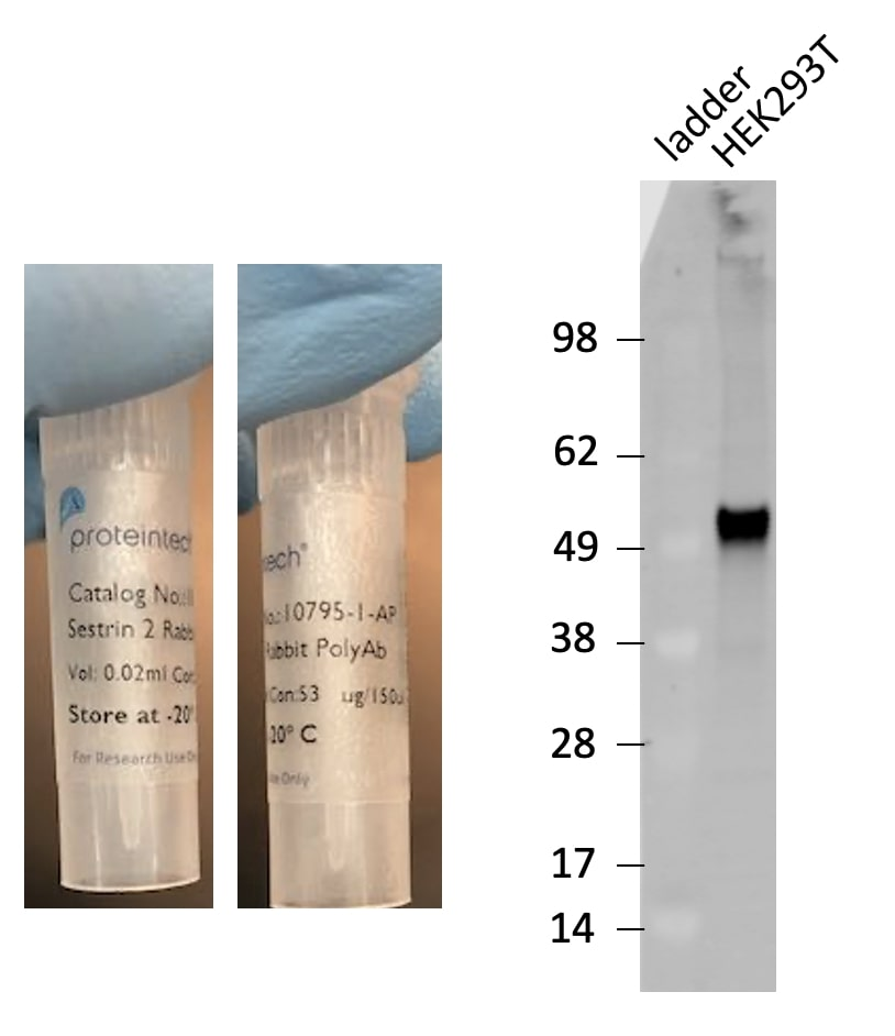 Sestrin 2 Antibody Western Blot validation (1:1000 dilution) in HEK293T (Cat no:10795-1-AP)