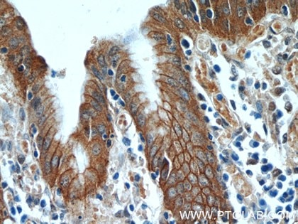 Figure 1. Immunohistochemistry of paraffin-embedded human stomach tissue slide using 12831-1-AP (Alpha E catenin antibody) at dilution of 1:50 (under 40x lens).