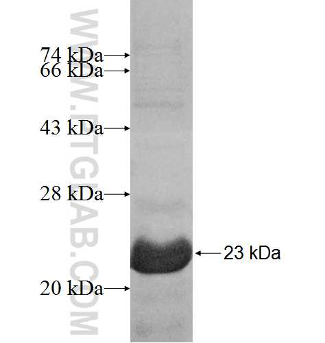 8858-1/1 fusion protein Ag10021 SDS-PAGE