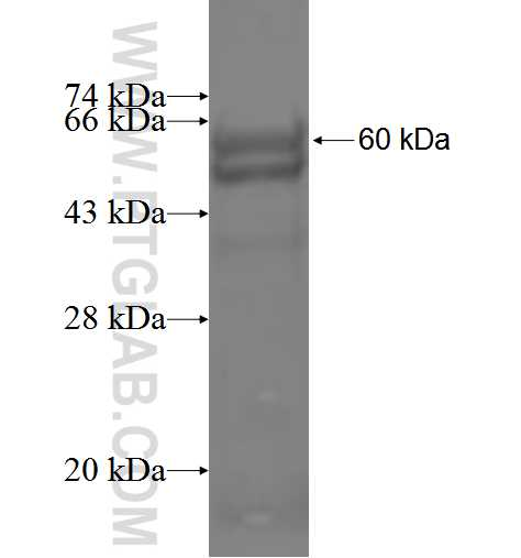 ABHD2 fusion protein Ag5108 SDS-PAGE