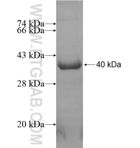 ABHD6 fusion protein Ag13968 SDS-PAGE