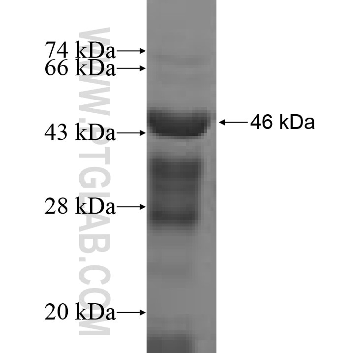 ACAD8 fusion protein Ag9967 SDS-PAGE