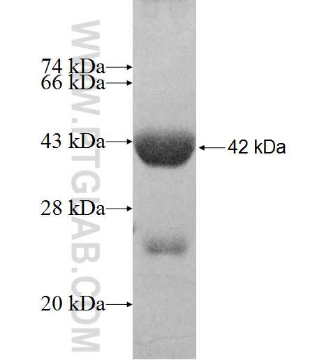 ACAD9 fusion protein Ag8414 SDS-PAGE
