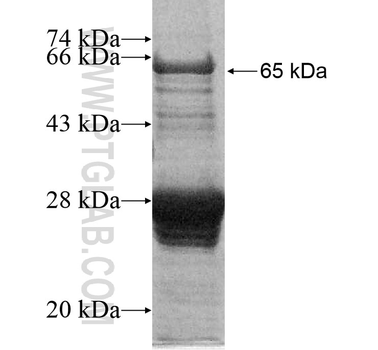 ACAP3 fusion protein Ag11777 SDS-PAGE