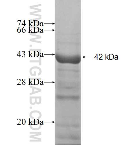 ACP2 fusion protein Ag7523 SDS-PAGE