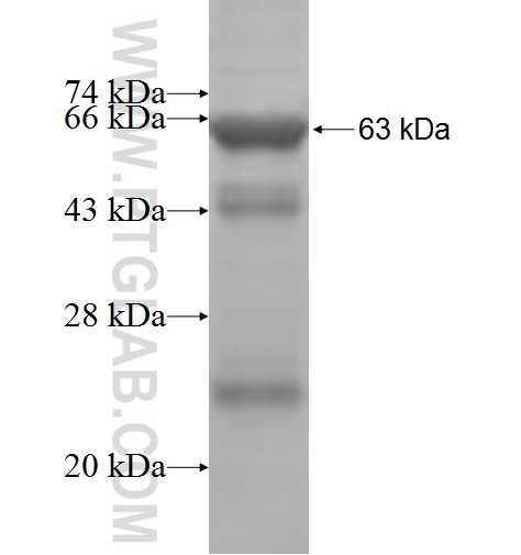 ACSL6 fusion protein Ag4817 SDS-PAGE