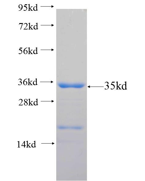 ADAD1 fusion protein Ag25966 SDS-PAGE