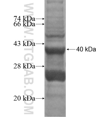 ADAD2 fusion protein Ag15650 SDS-PAGE