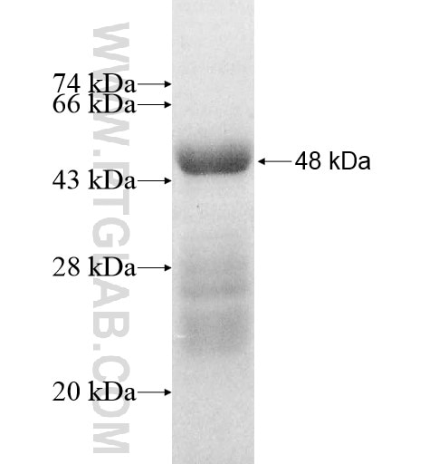 ADCK1 fusion protein Ag11850 SDS-PAGE