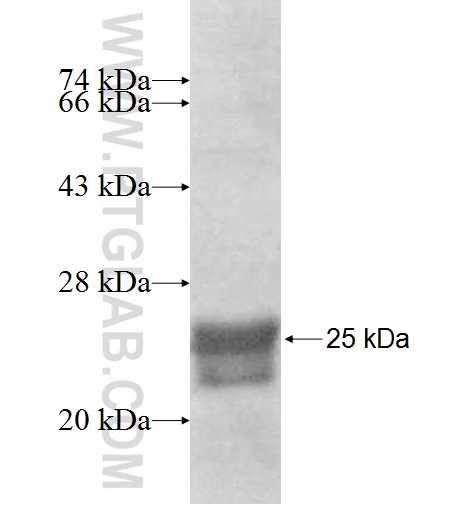 AGXT2L2 fusion protein Ag8374 SDS-PAGE