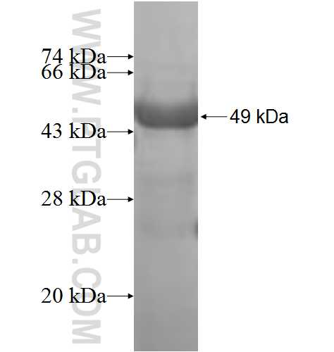 AIPL1 fusion protein Ag8149 SDS-PAGE
