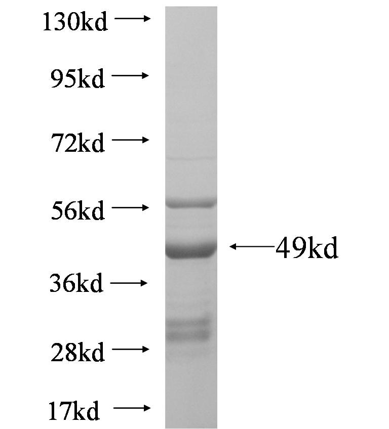 AMN1 fusion protein Ag6257 SDS-PAGE