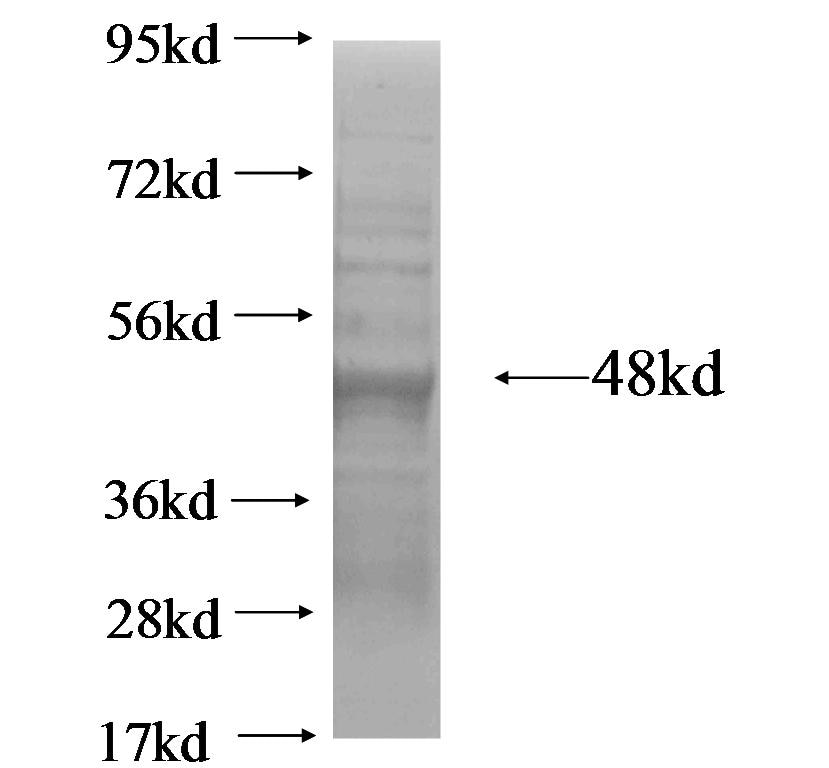 AMTN fusion protein Ag18439 SDS-PAGE