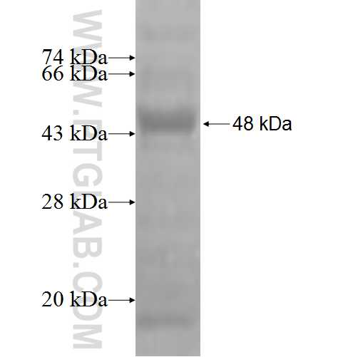 AP3M1 fusion protein Ag2759 SDS-PAGE