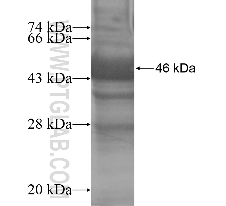 APCS fusion protein Ag14765 SDS-PAGE