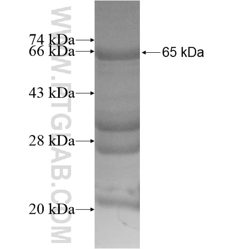 APTX fusion protein Ag13390 SDS-PAGE