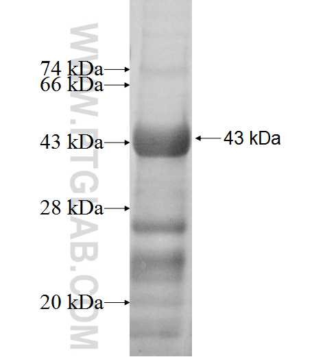 ARSB fusion protein Ag6924 SDS-PAGE