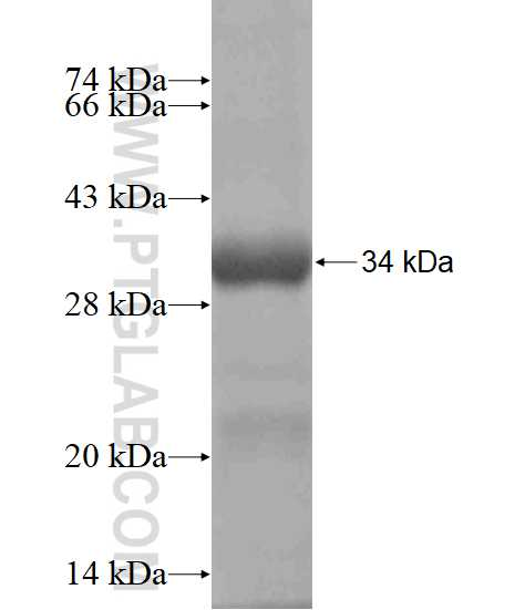 ATG2B fusion protein Ag18552 SDS-PAGE