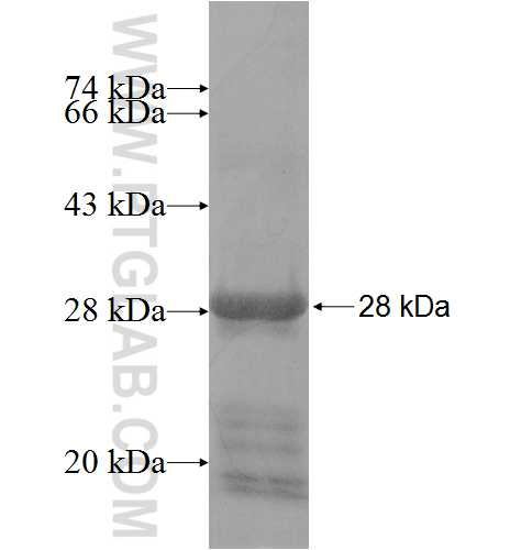 ATP10A fusion protein Ag10039 SDS-PAGE