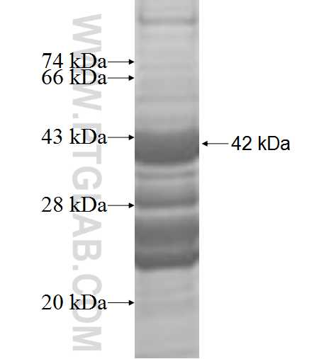 ATP13A1 fusion protein Ag9174 SDS-PAGE
