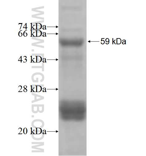 ATRIP fusion protein Ag5102 SDS-PAGE