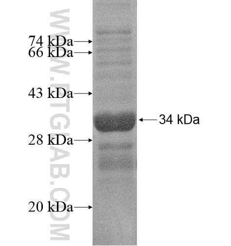 BZW2 fusion protein Ag15126 SDS-PAGE