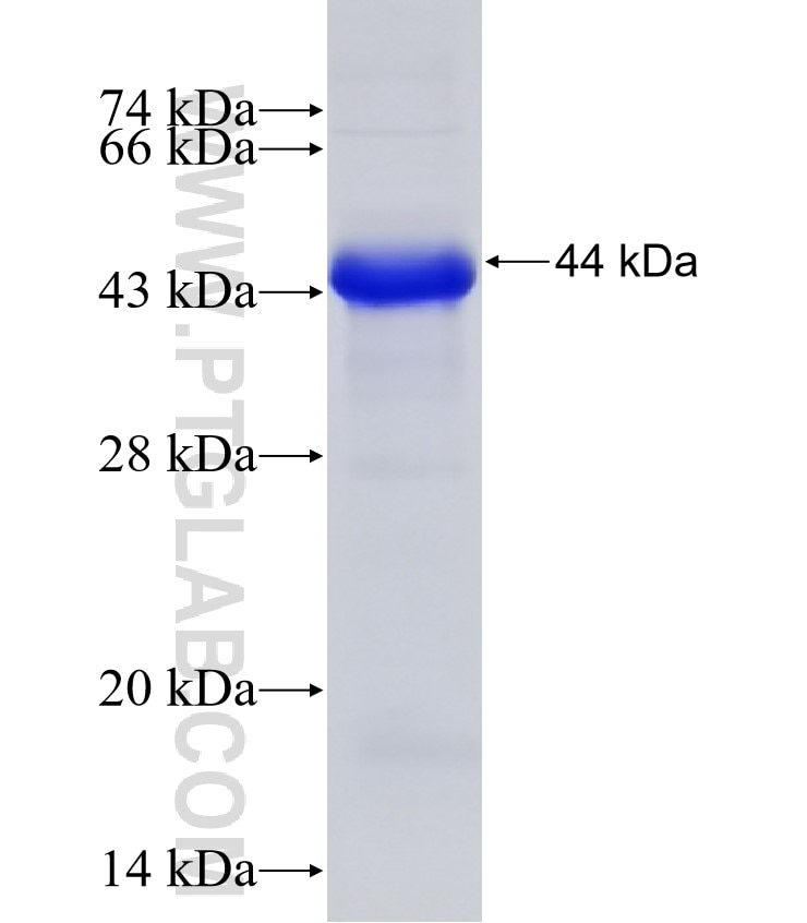C1S fusion protein Ag6063 SDS-PAGE