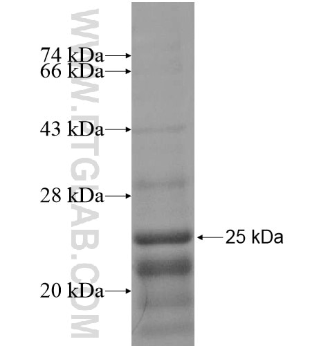 C1orf77 fusion protein Ag14736 SDS-PAGE