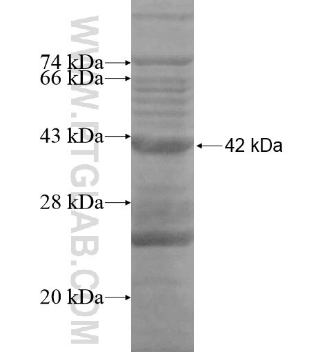 C2orf58 fusion protein Ag14908 SDS-PAGE