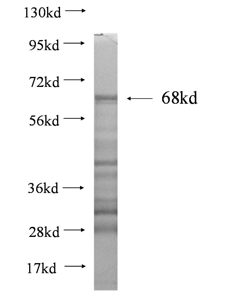 CA9 fusion protein Ag1540 SDS-PAGE