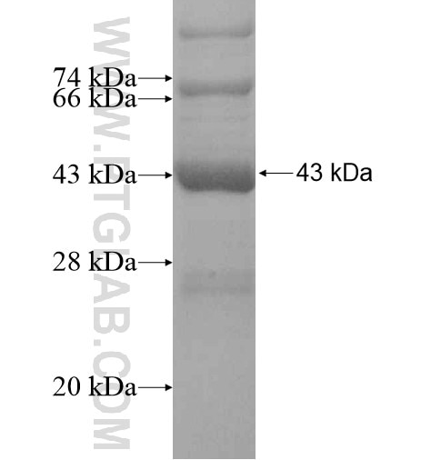 CAPRIN2 fusion protein Ag14745 SDS-PAGE
