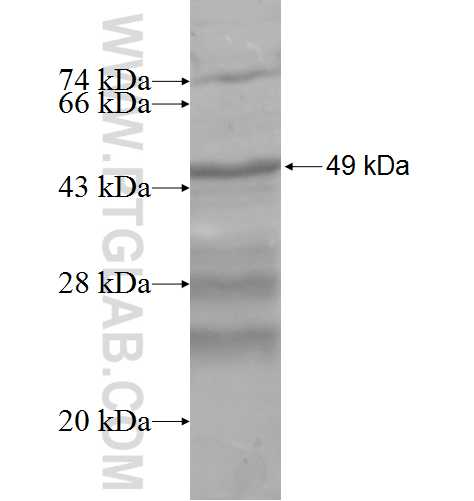 CBX2 fusion protein Ag7979 SDS-PAGE