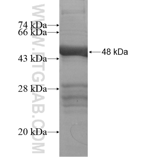 CCDC158 fusion protein Ag14004 SDS-PAGE