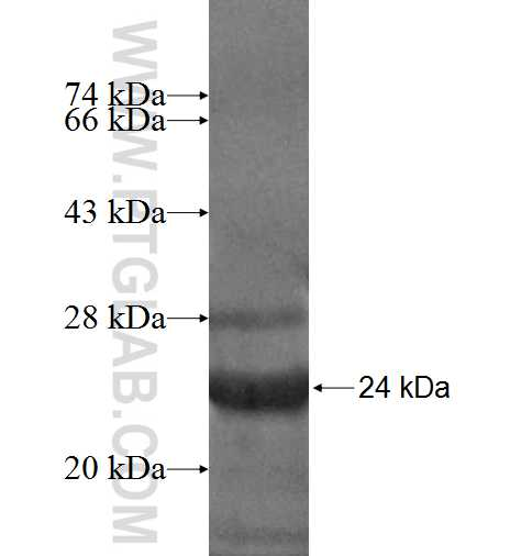 CCDC28A fusion protein Ag6865 SDS-PAGE