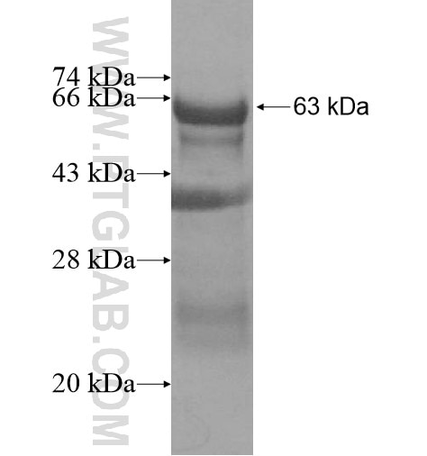 CCDC94 fusion protein Ag13764 SDS-PAGE