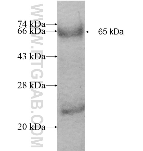 CD93 fusion protein Ag13132 SDS-PAGE
