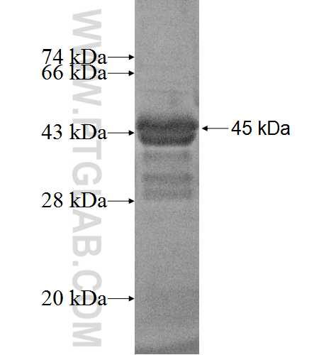 CNBP fusion protein Ag2747 SDS-PAGE