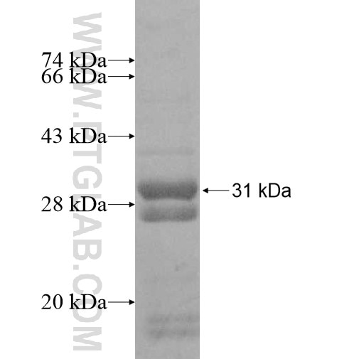 COQ10B fusion protein Ag11024 SDS-PAGE