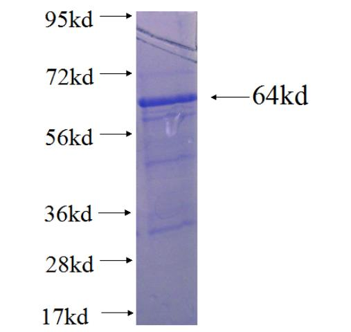 CREST fusion protein Ag3119 SDS-PAGE