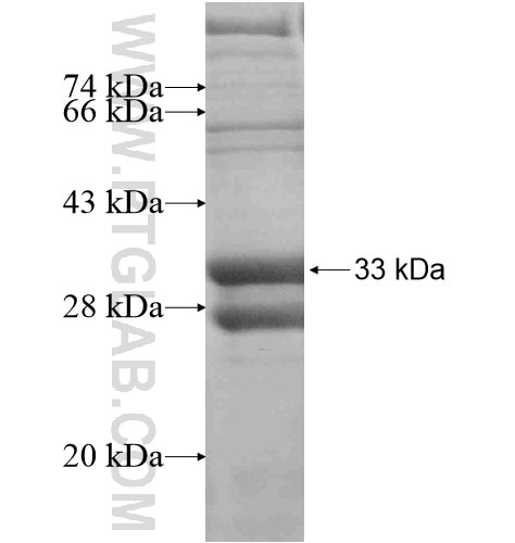 CRISPLD2 fusion protein Ag15049 SDS-PAGE