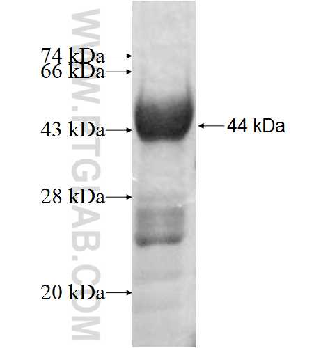 CTPS fusion protein Ag8928 SDS-PAGE