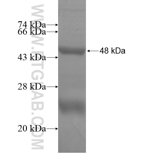 CYP26B1 fusion protein Ag15368 SDS-PAGE