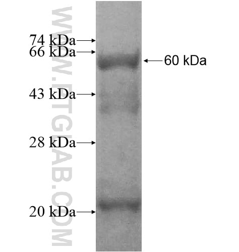 CYP2D6 fusion protein Ag12351 SDS-PAGE