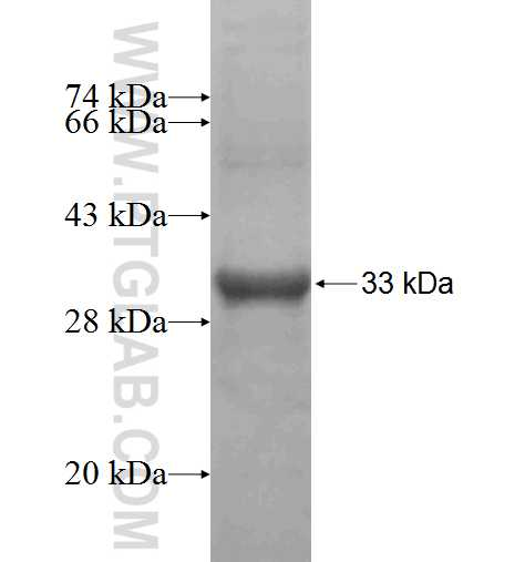D2HGDH fusion protein Ag5036 SDS-PAGE