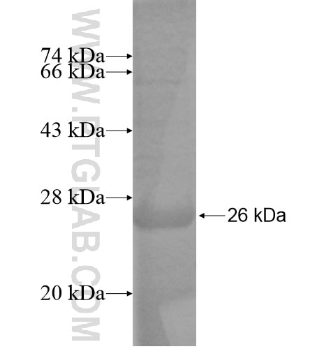 DDX49 fusion protein Ag14373 SDS-PAGE